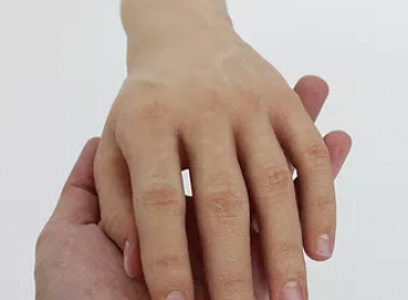 Prosthetic hands Image